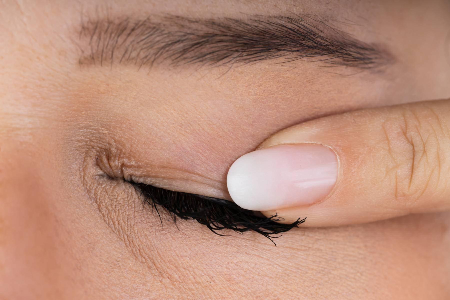 knottror under ögonlocken