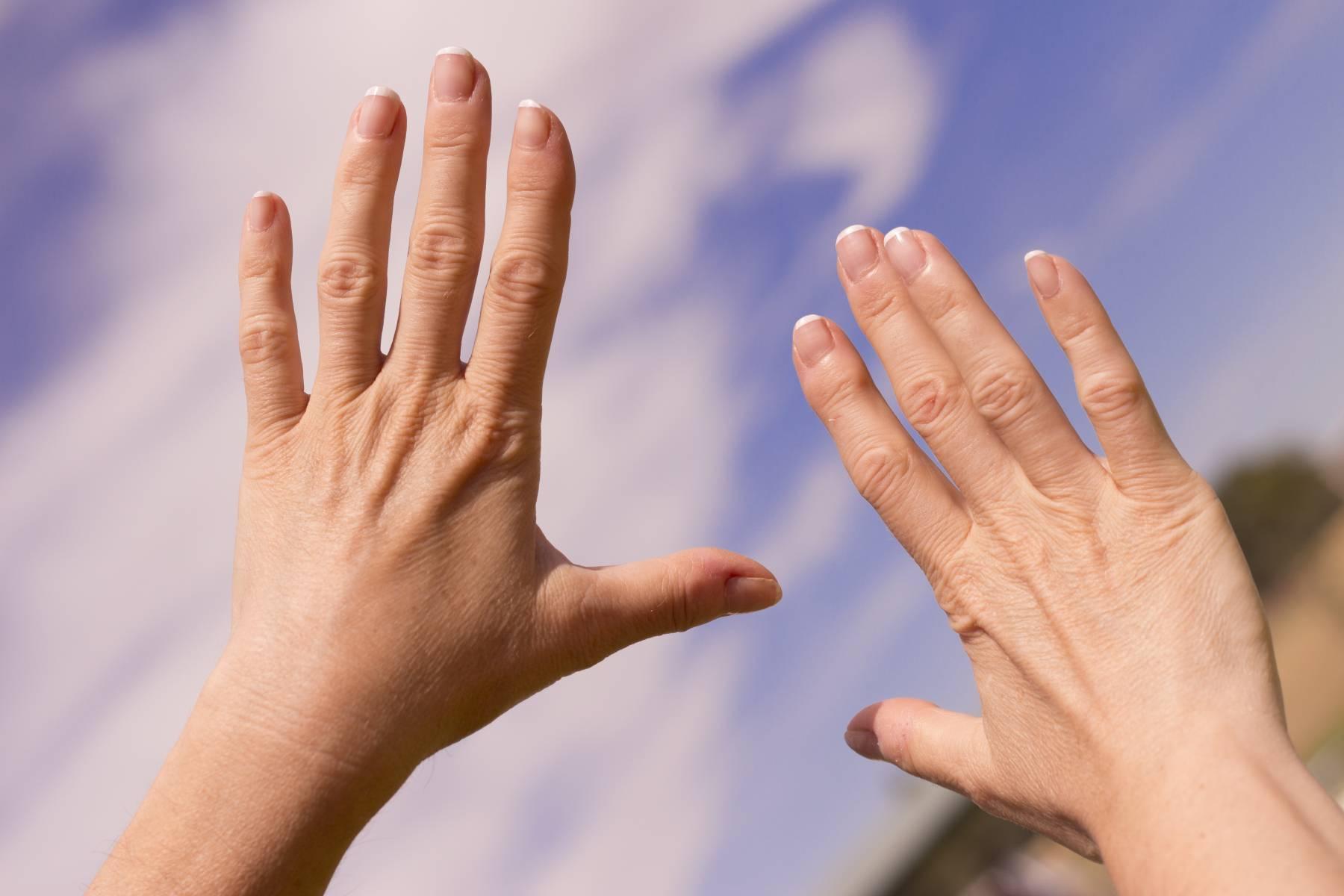 reumatism symtom fingrar