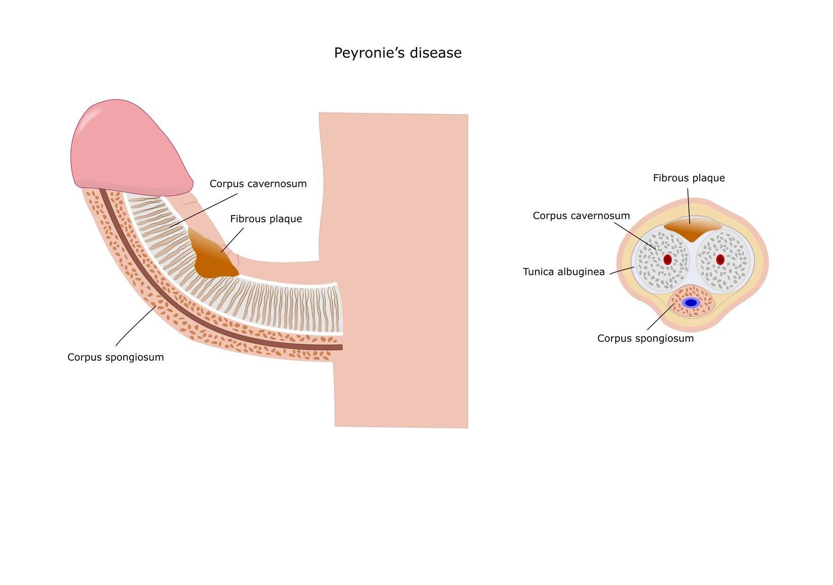 Trängningar i urinröret