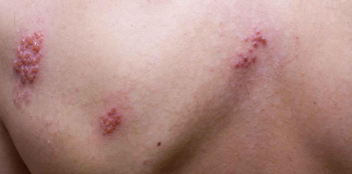 infektion under huden