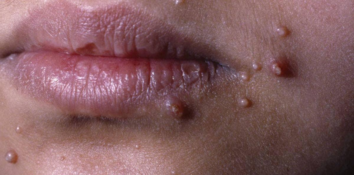 inkubationstid herpes underlivet