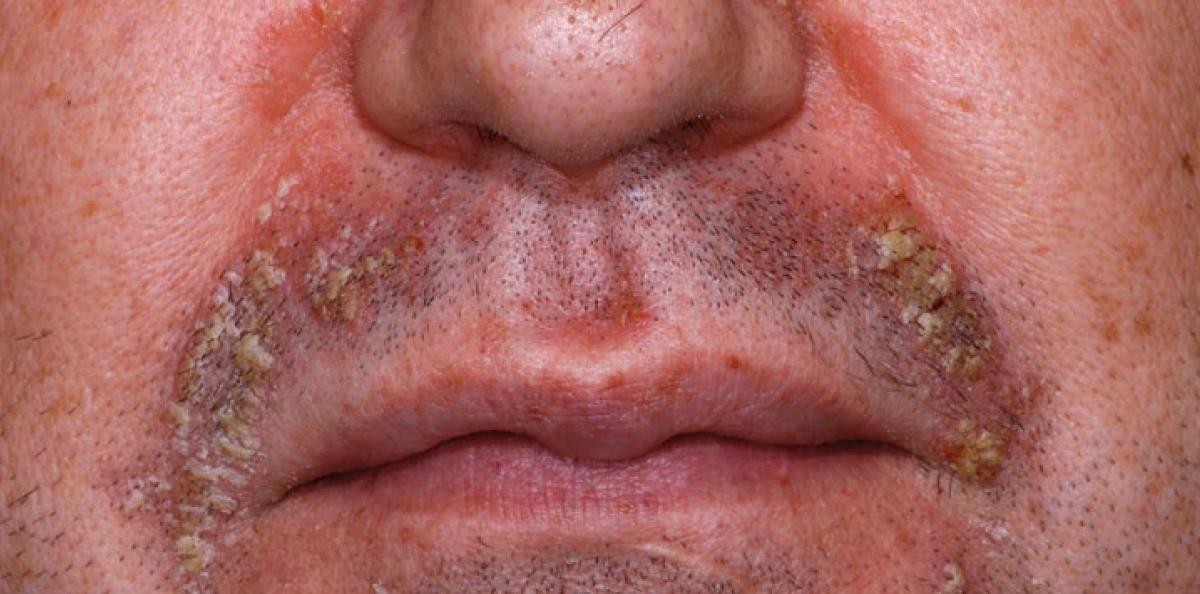 hudsvamp i ansiktet