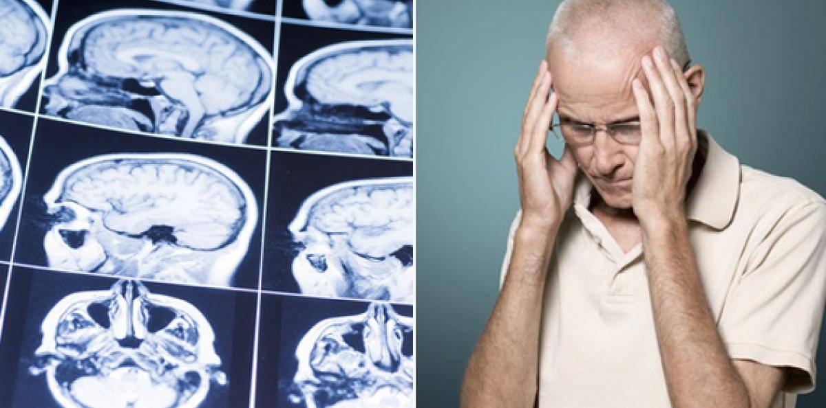 symtom på stroke hos kvinnor