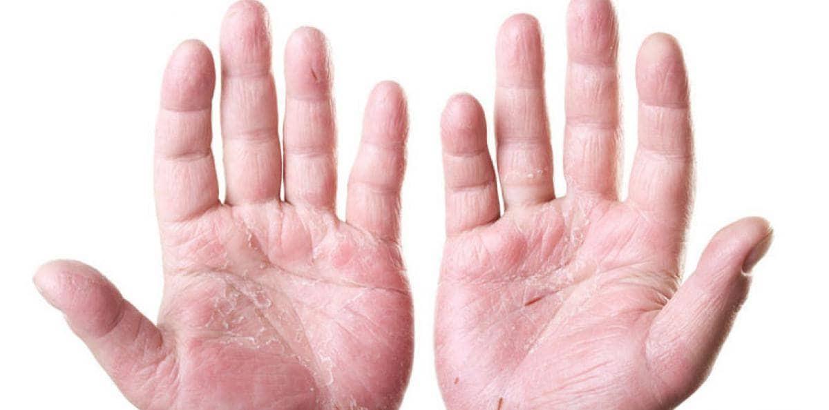 Svamp på fingrarna