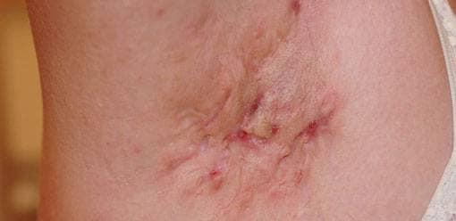 Bild på Hidradenitis suppurativa (HS, acne inversa, hidradenit)