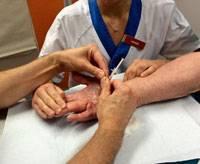 Handkirurgen Stephan Wilbrand sträcker ut Sture Hedenskogs fingrar för att se till att injektionen bara når själva bindvävssträngen och inte senan bakom.