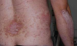 Psoriasis ger röda, fjällande utslag. Plackpsoriasis är den vanligaste formen.