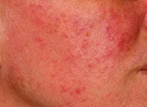 Så här kan rosacea (tidigare ofta kallad vuxenakne) se ut på en kind.