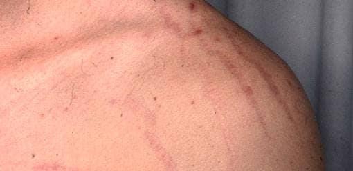 Bilder På Hudsjukdomar Och Hudåkommor Netdoktor