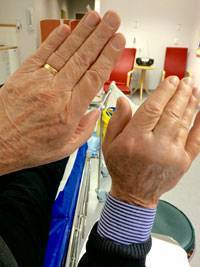 Sture Hedenskogs högerhand har svullnat upp efter enzyminjektionen. Helt normalt, enligt kirurg Stephan Wilbrand.