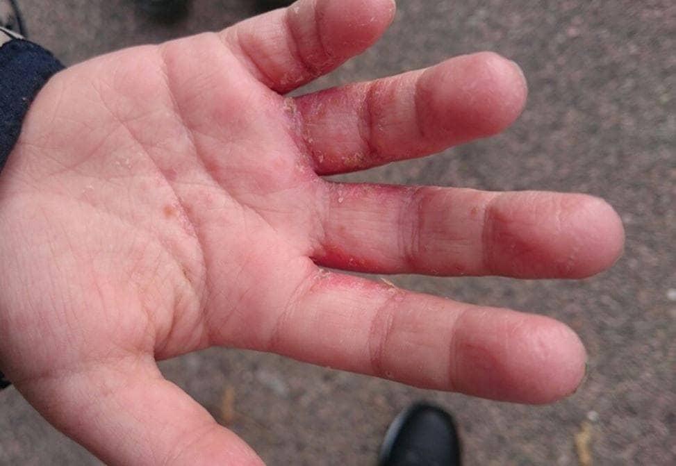 tappar hud på fingrarna