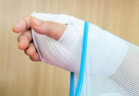 Expertsvar om vikingasjukan (krokiga fingrar)