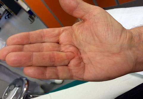 Behandling mot krokiga fingrar (vikingasjukan, Dupuytrens kontraktur)
