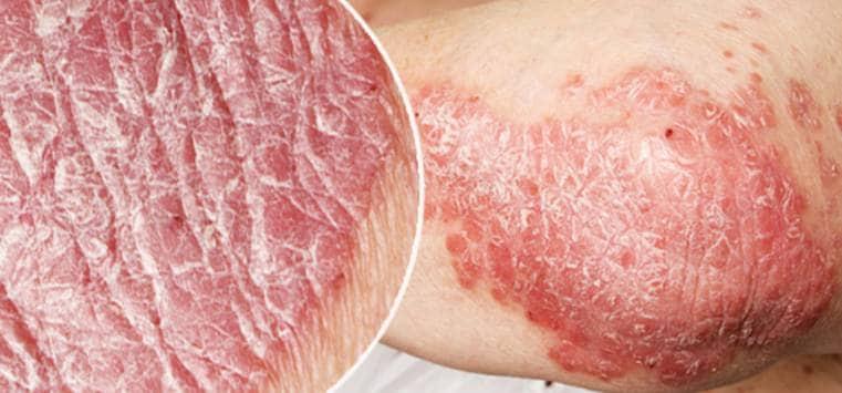 Psoriasis – mer än bara en hudsjukdom