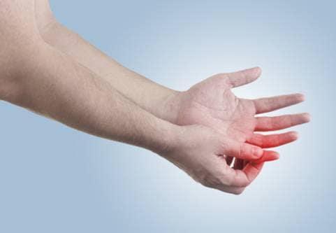 Framtiden ljus för patienter med krokigt finger