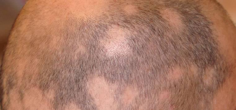 Bild föreställer alopeci håravfall hos man