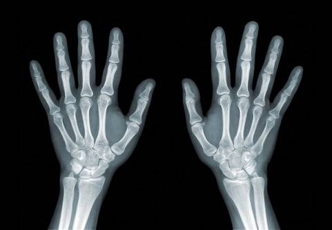 Reumatism - ledgångsreumatism RA