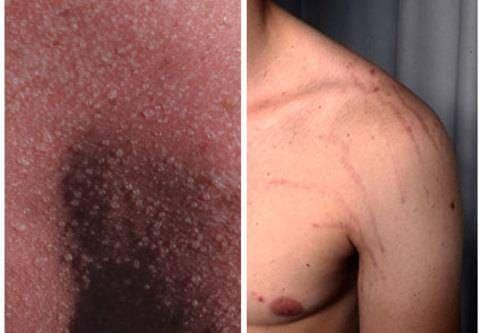 Bilder på hudsjukdomar och hudåkommor