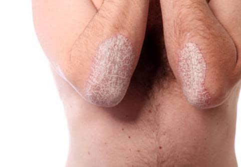 Psoriasis armbågar