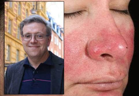 Rosacea näsa kinder
