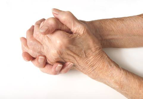 """Dupuytrens kontraktur eller """"vikingasjukan"""" är en sjukdom som påverkar bindvävsplattan (fascian) i handflatan och fingrarna"""