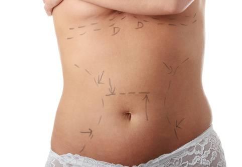 Fettsugning, eller liposkulptur, görs för att ta bort lokaliserade fettansamlingar