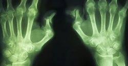 Olika former av artros