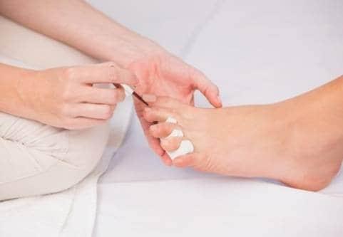 Nagelsvamp är en vanlig sjukdom.
